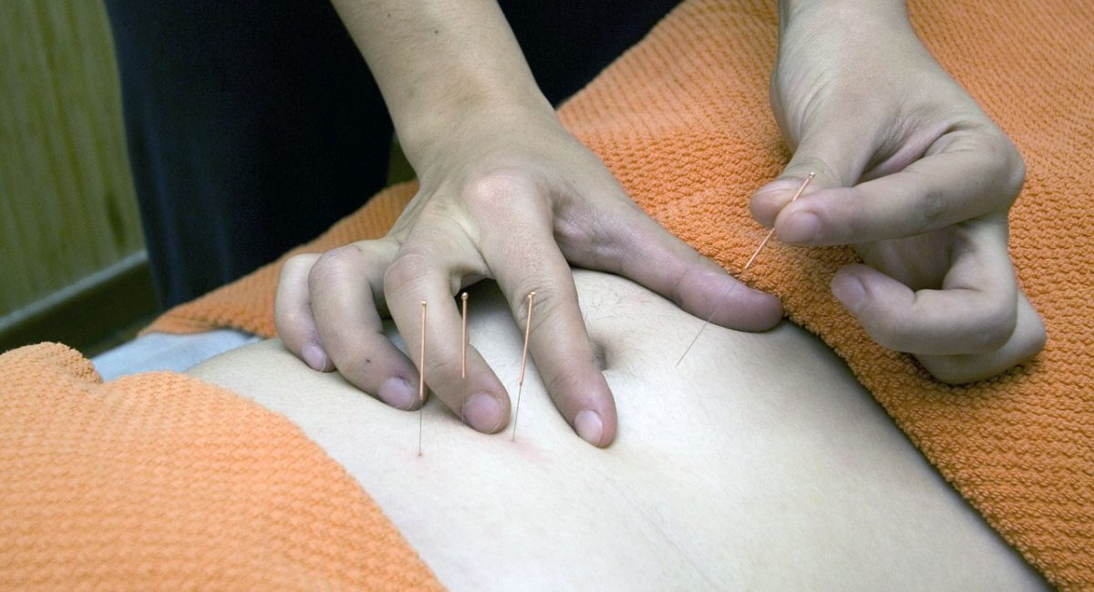 Person practicing acupuncture